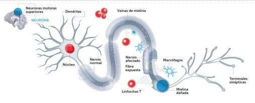 Tratamientos orales para la esclerosis múltiple