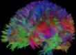 fármaco para la esclerosis múltiple